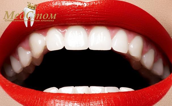Скидка на Стоматология в клинике «МедСтом»: лечение кариеса, эстетическая реставрация зубов или установка коронок! Скидка до 72%